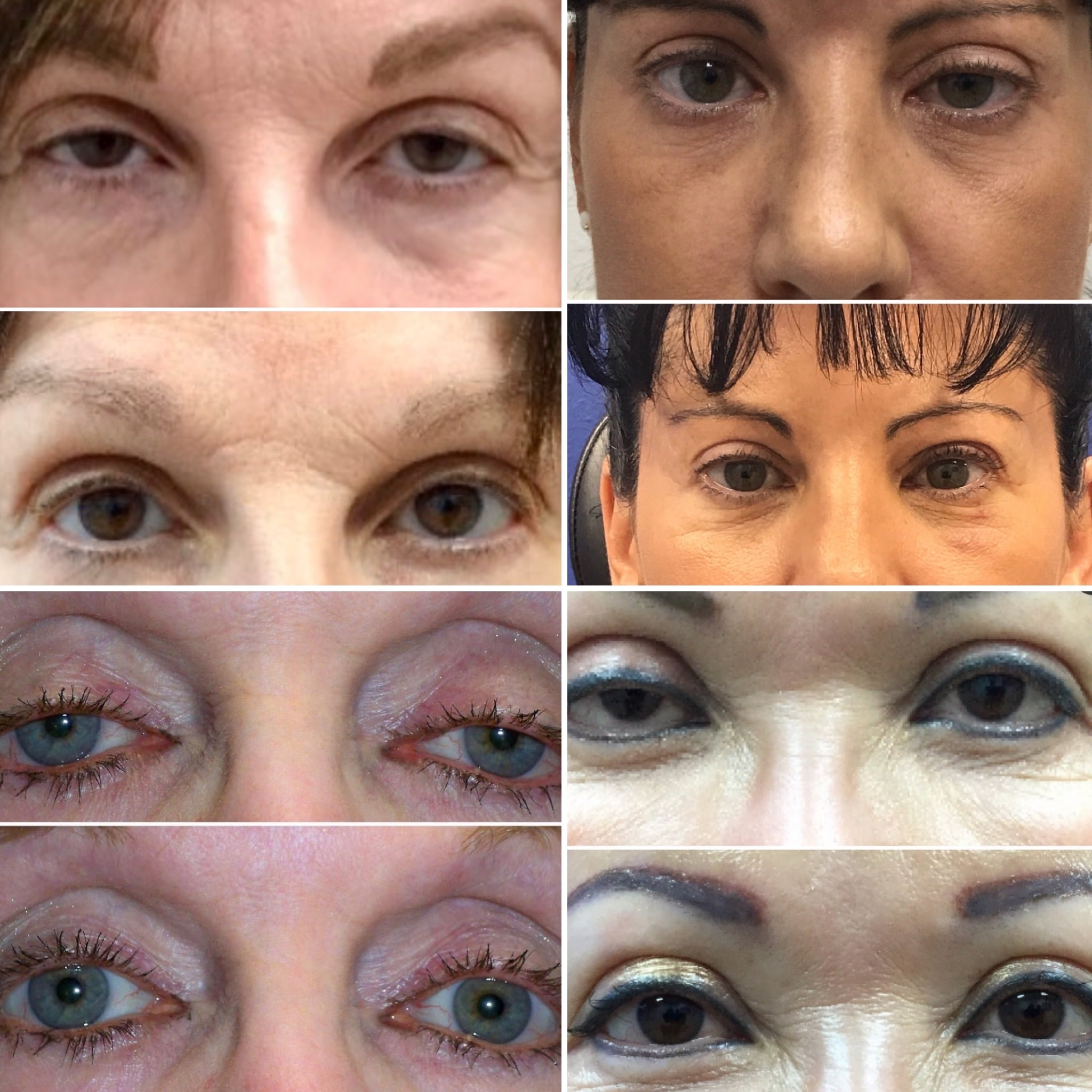 Botched Eyelid Surgery